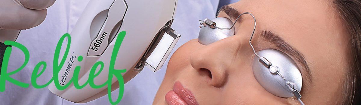 The Lumenis M22™ – Dry Eye Technology
